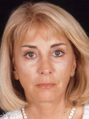 Best Facial Rejuvenation