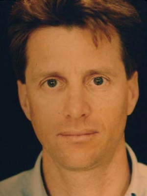 Endoscopic-Facial-Rejuvenation