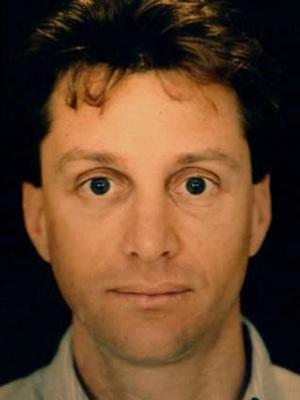 Endoscopic-Facial-Rejuvenation by Peter Fodor